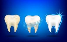 牙齿蓝色广告背景