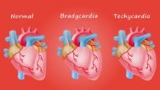 人物心脏器官视频