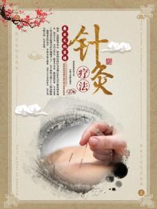 中国风中医针灸疗法宣传挂画设计